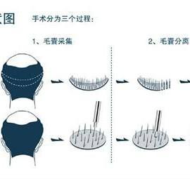 毛发移植培训